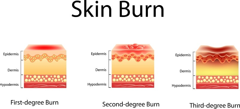 Three degrees of burns