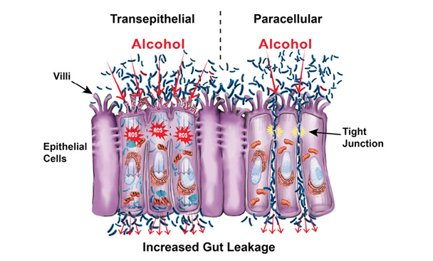 alcohol weakens the gut