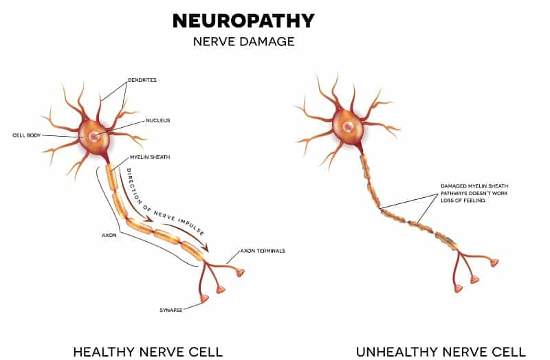 Neuropathy that is the damage of nerves, this can be caused by Diabetes.